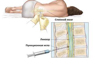 Чем опасна пункция спинного мозга