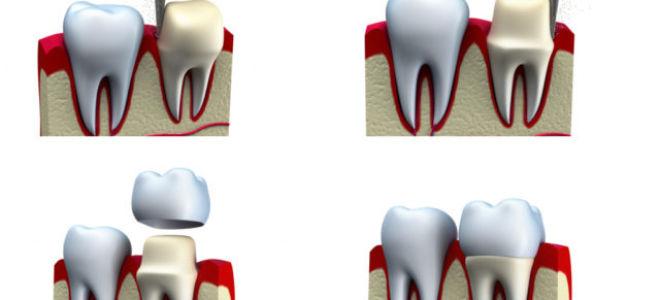 В каких случаях ставят коронку на зуб?