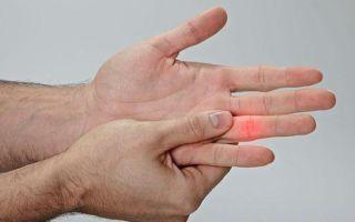 Как лечить выбитый палец