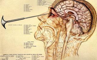 Как делают лоботомию