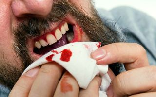 Как остановить кровь из десен