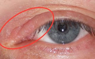 Что делать, если опухло верхнее веко глаза