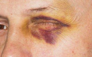 Как снять отек с глаза от удара