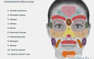 Как избавиться от отёка на лице