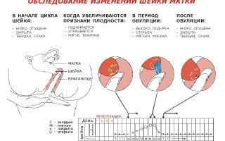 Как определить раскрытие шейки матки