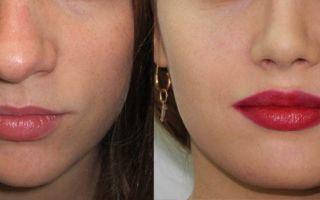 Как уменьшить кончик носа