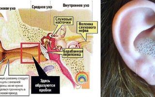 Как почистить уши