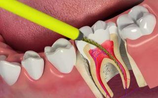Почему болит зуб с удаленным нервом