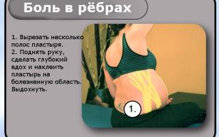 Что сигнализирует боль в ребрах и под ними