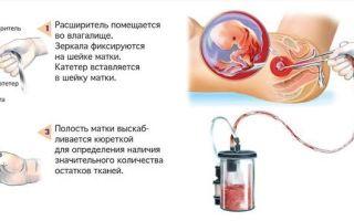 Как прервать беременность уколами