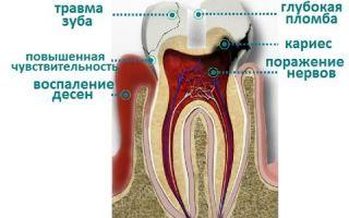 Почему болят запломбированные зубы