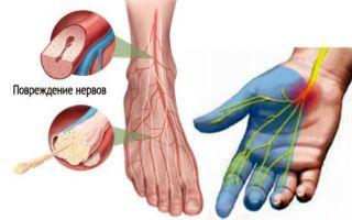 Что такое нейропатия и как ее лечить