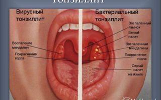 Что делать, если в горле вскочили пузырьки