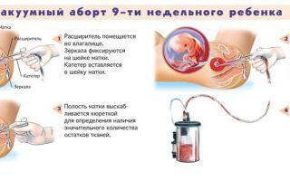 Через сколько можно забеременеть после аборта