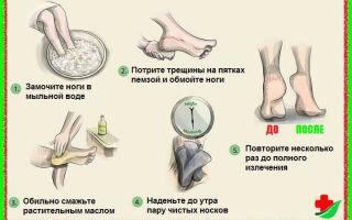 Что означают ямочки на щеках
