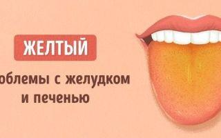 О чем расскажет цвет и форма вашего языка