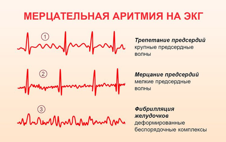 Как самому определить аритмию - Лечение гипертонии